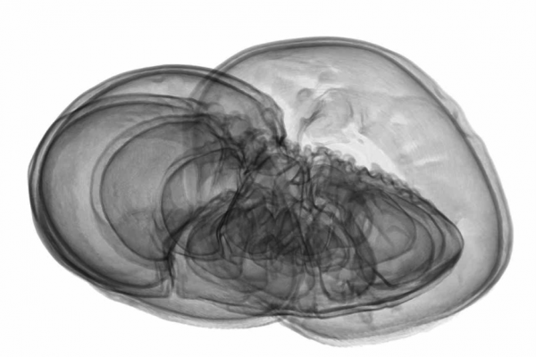 Anne Bevan Ammonia Beccarii giclee print from CT scan with Dr Ian Butler & Michael Wolchover 2012